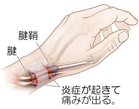 腕、肘、手首、指のトラブルの原因と治療法