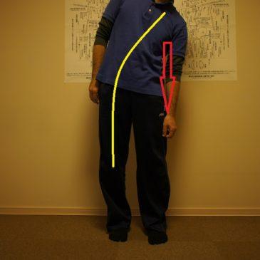 臨床例・・・脊柱すべり症