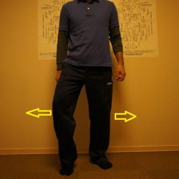 股関節疾患の運動療法にはタイプ分けが必須!!・・・O脚系