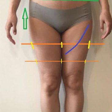 脚の太さの違い、お尻の大きさの違いありませんか?