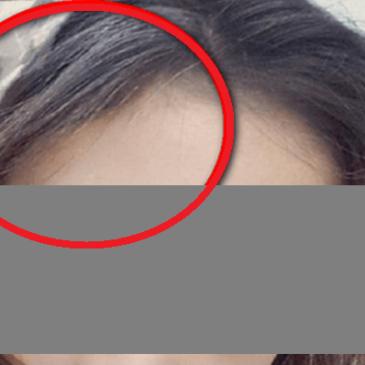 片側に生える白髪