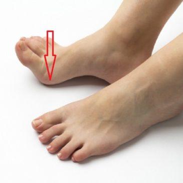 足の裏のどこに重心がかかっていますか?