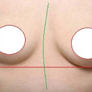 胸の高さや大きさの左右差・・・乳がんなどとの関係