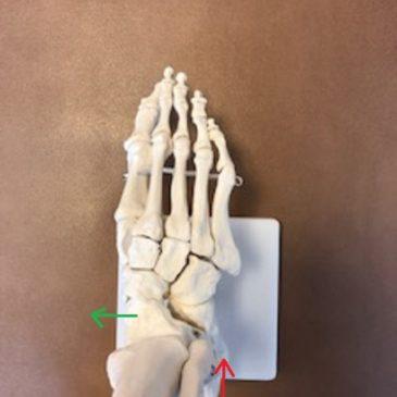 外脛骨の起こる理由と根本治療