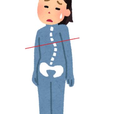 変形性股関節症、先天性股関節脱臼、痛みを消すだけでは足りない!!