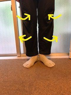 股関節痛 変形性股関節症 臼蓋形成不全
