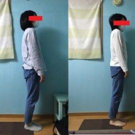 姿勢矯正 猫背 股関節矯正