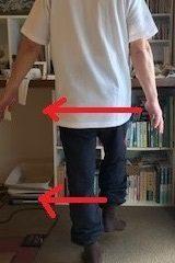 片脚立ちふらつく アンバランス 原因不明歩行困難 ビッコ
