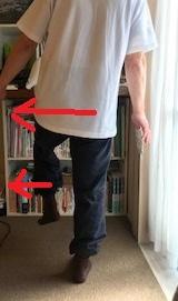 原因不明歩行困難 ビッコ 跛行 片足立ちがふらつく
