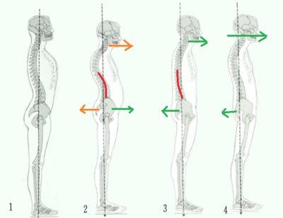 姿勢の悪化 西荻窪整体院 歩き方 筋膜 股関節痛 膝痛