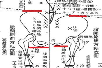 骨盤の歪み お尻の形 礒谷式力学療法 西荻窪整体