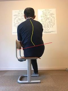 脚を組む 側弯症 骨盤の歪み 磯谷式力学療法 西荻窪整体