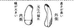 足の甲の痛み 磯谷式力学療法 西荻窪整体 足のトラブル