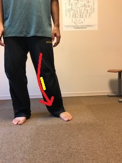 体の左右差 ビッコ治療 礒谷式力学療法 西荻窪整体 西荻窪股関節